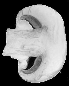 Mushrooms-ears-shape